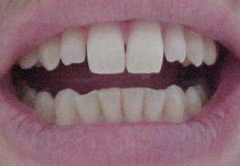 Mudança estética de sorriso