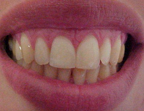 Diastemas - Dentes Separados
