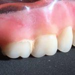 tartaro na dentadura