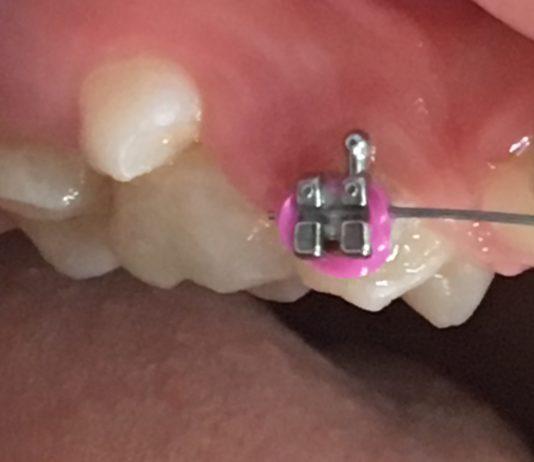 tem um dente em cima do outro