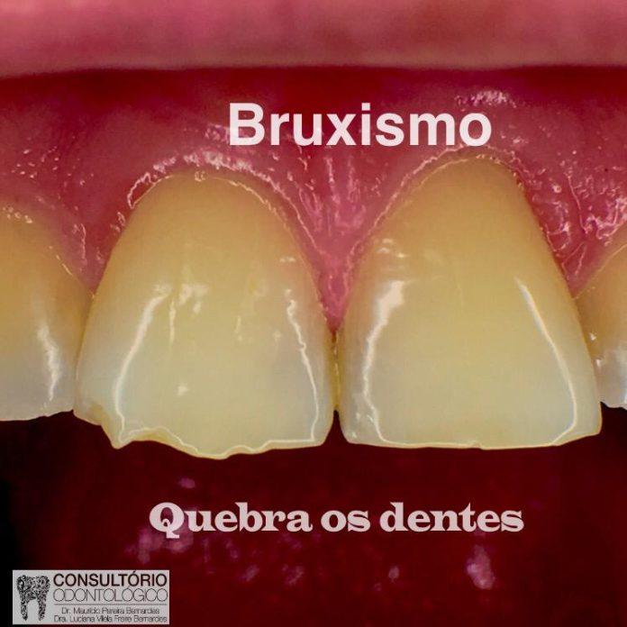 Bruxismo 3