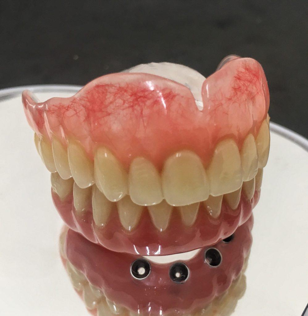 Implante dentario protocolo
